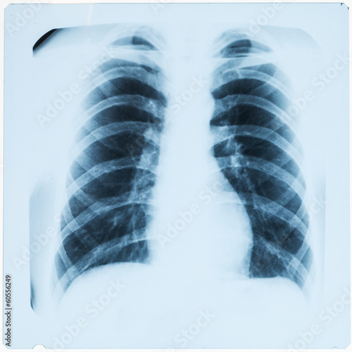 X-ray of man's chest after pneumonia