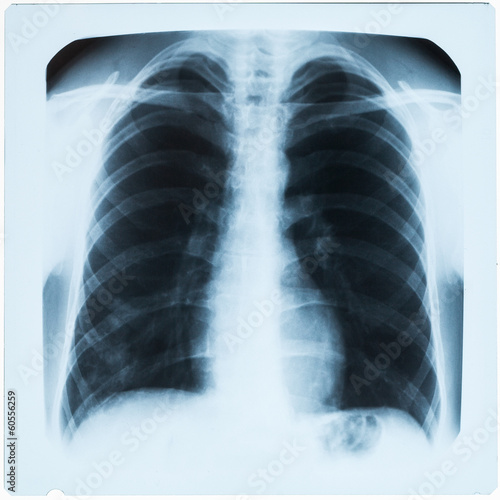 X-ray of man's chest during pneumonia