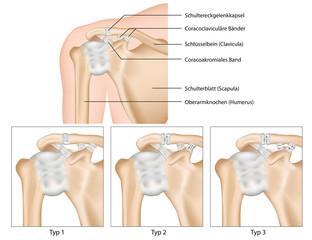 Schultereckgelenksverrenkung, Erklärung deutsch