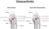 Knee Joint with Osteoarthritis