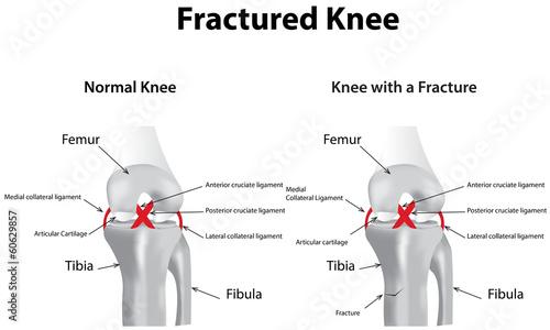 Fractured Knee