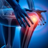 Schmerz im Kniegelenk 2 - 60710265