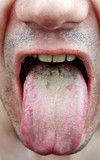Disease tongue