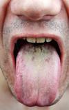 Fototapety Disease tongue