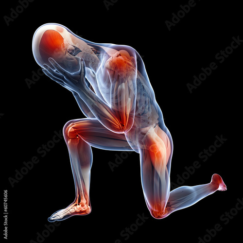 medical illustration showing inflamed, painful joints
