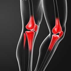Human knee pain with the anatomy of a skeleton leg