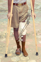 leg splint for treatment of injuries from broken bones