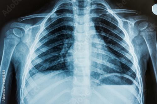 Child X-Ray Film - 60885835