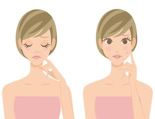 鼻の黒ずみ ニキビ 女性