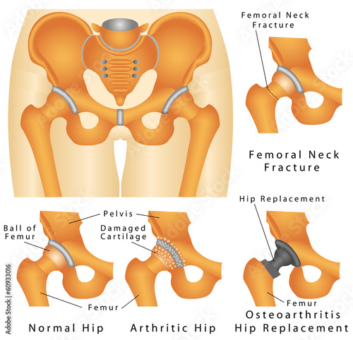 Hip joint. Arthritic Hip. Hip fracture