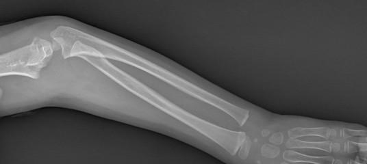Broken arm xray