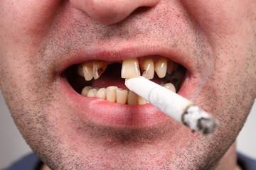 Bad teeth, smoker