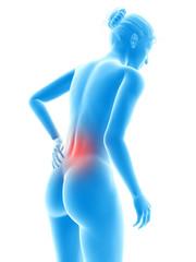 3d rendered illustration - woman having backache