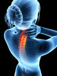 3d rendered illustration - woman with painful neck