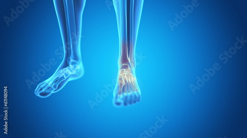 medical animation - pain in the foot