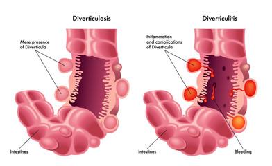 Diverticolite & Diverticolosi
