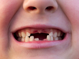 Mouth of boy with Changing Teeth