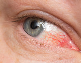 Chronic conjunctivitis eye with a red iris and pus close-up.