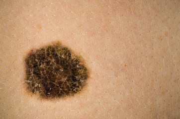 Melanoma, Mole, Skin Cancer. High definition image.