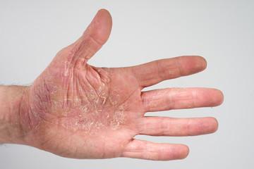 Baby Schwitzige Hände