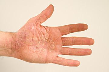li. Hand 831 Neurodermitis