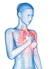 medical 3d illustration - heart attack
