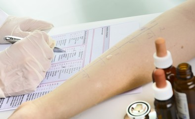 Arzt schreibt in Formular Allergietest Pricktest