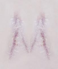 Scar letter M on human skin
