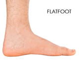 Men's foot. Flatfoot second degree.