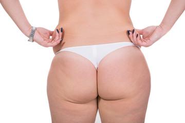 Woman  pinching skin on the waist
