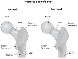 Fractured Body of Femur