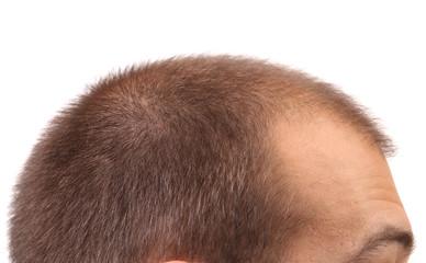 Close up of mans head.