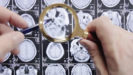Medical research. Magnetic resonance imaging.
