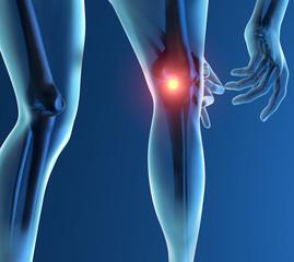 Infiammazione dolore ginocchio scheletro raggi x