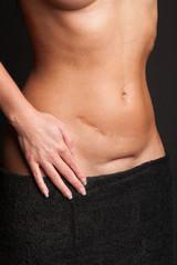 Bauch einer hübschen Frau mit Narben