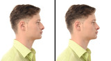 Man with nose job plastic surgery.Rhinoplasty before after photo