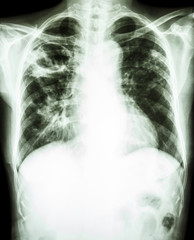 Mycobacterium tuberculosis infection (Pulmonary Tuberculosis)