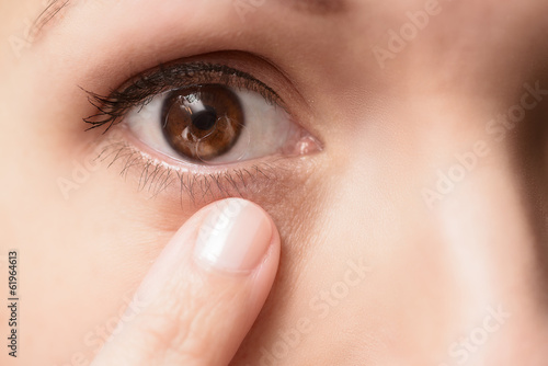 canvas print picture Close up of a contact lens in an eye