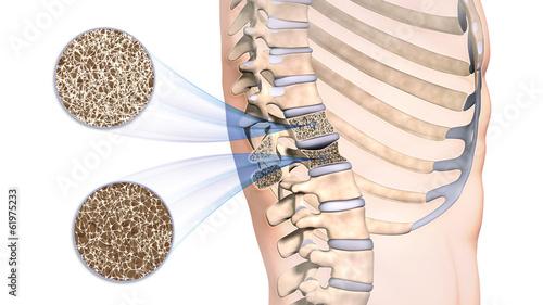 Leinwanddruck Bild Osteoporose im Rückenwirbel