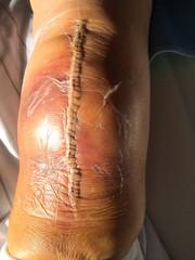 Knie nach einer Operation - Kniegelenksprothese