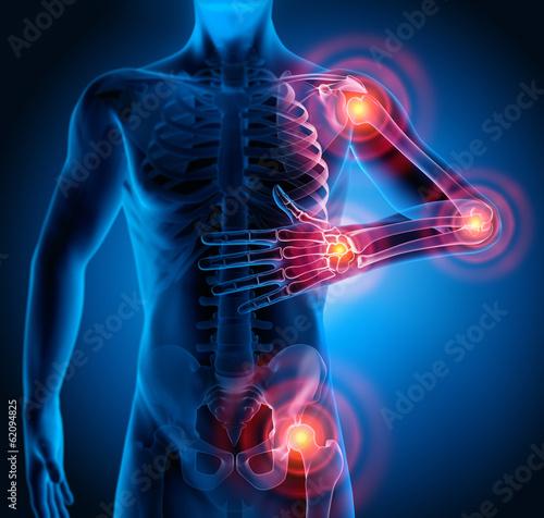 Leinwanddruck Bild Rheuma-Schmerzpunkte 2