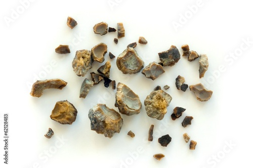 Kidney stones after ESWL intervention