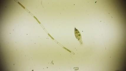 Fröhliches Rädertierchen unter dem Mikroskop in Full HD
