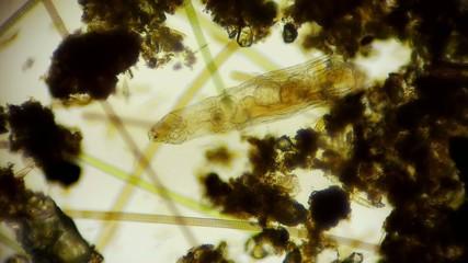 Rädertierchen unter dem Mikroskop in Full HD