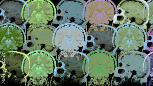 Human brain. Animated background.