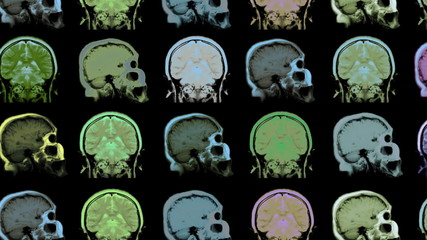 MRI scan. Human brain. Animated background