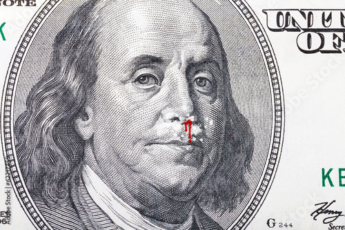 Cocaine problem as a symbol on hundred dollar banknote