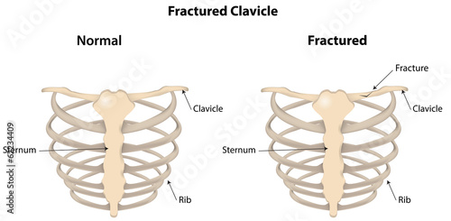Fractured Clavicle Labeled Diagram