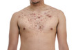Acne, scars and keloids in the chest