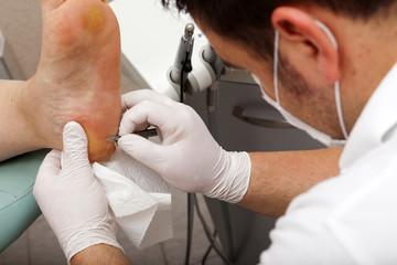 Fußpfleger entfernt Hornhaut an der Fußsohle